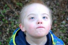 El muchacho con Síndrome de Down mira para arriba al cielo Imagen de archivo