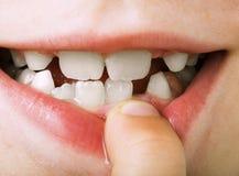 El niño muestra el diente Foto de archivo libre de regalías