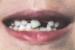 El niño muestra los dientes que falta fotografía de archivo libre de regalías