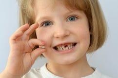 El niño, niño, muestra el diente de bebé caido Imagen de archivo libre de regalías
