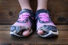El niño calza los dedos del pie de los agujeros que se pegan hacia fuera Foto de archivo libre de regalías