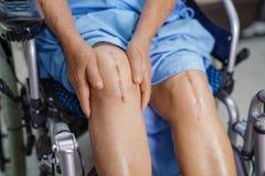 El paciente mayor o mayor asi?tico de la mujer de la se?ora mayor muestra a sus cicatrices arthropla total quir?rgico de la cirug foto de archivo