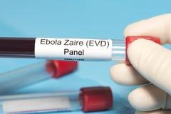 El panel del laboratorio de Ebola Foto de archivo