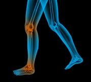 El pie doloroso rinde Fotografía de archivo libre de regalías