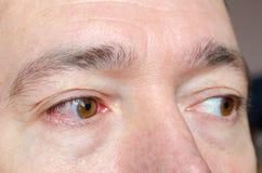 El primer irritó los ojos inyectados en sangre rojos infectados, conjuntivitis fotografía de archivo