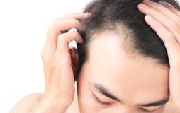 El problema de la pérdida de pelo de la preocupación del hombre joven para el champú de la atención sanitaria y sea foto de archivo libre de regalías