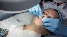 El procedimiento para el limpiamiento mecánico de la cara en el área de los labios almacen de metraje de vídeo