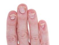 El psoriasis en las uñas aisló el fondo blanco Imagenes de archivo