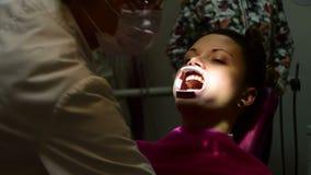 El retractor de la mejilla del ajuste y la succión dental en el ` s de la muchacha articulan metrajes