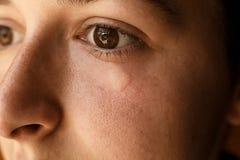 El retrato de la muchacha hiere la picadura de abeja en cara debajo de ojo Hinchamiento y imágenes de archivo libres de regalías
