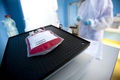 El técnico de laboratorio procesa el bolso de la sangre Foto de archivo libre de regalías