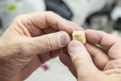 El técnico dental Working On 3D imprimió el molde para los implantes del diente Foto de archivo