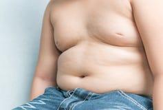 El tamaño del estómago de niños con exceso de peso imagenes de archivo