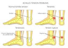 El tendón de Aquiles hiere ilustración del vector