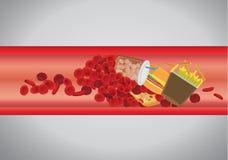 El vaso sanguíneo es bloqueado por la hamburguesa y los alimentos de preparación rápida ilustración del vector