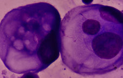 Elakartade celler i pleural vätska Royaltyfri Foto