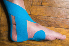 Elastic therapeutic tape of dislocated foot. Royalty Free Stock Image