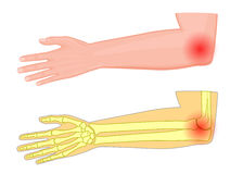 Elbow joint pain. Vector illustration of a human elbow joint with a pain or injury. EPS 10 Royalty Free Stock Photos