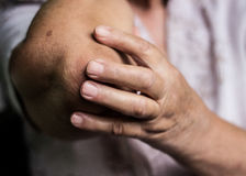 Elbow pain. Senior woman holding painful elbow Stock Photography