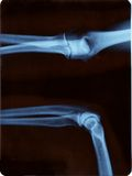 Elbow radiography. Right elbow radiography. Open and closed position Royalty Free Stock Photography