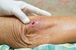 Elbow was abscess. Royalty Free Stock Images