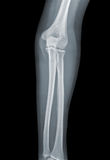 Elbow X-ray negative Royalty Free Stock Images