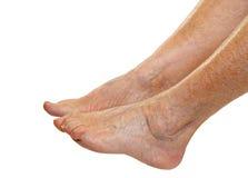 Elderly feet Royalty Free Stock Photo