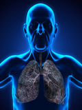 Elderly Male with Lung Cancer Illustration Stock Photography