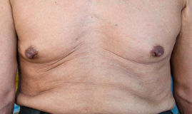 Elderly man with a cellulite on a stomach Stock Photos