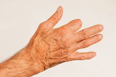 Elderly man hand. With amputated finger on white background royalty free stock image