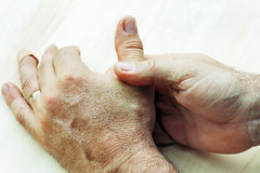 Elderly man has pain in his hands Stock Photos