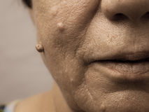 Elderly pensioner female, dermal fibroma closeup. Royalty Free Stock Images