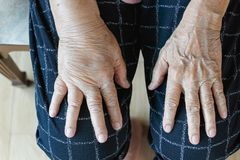 Free Elderly Swollen Hand Or Edema Hand Stock Photos - 152608873