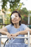 Elderly use eye shield covering after cataract surgery. Stock Photos