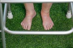 Elderly woman bare swollen feet on grass Stock Photo