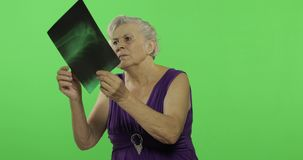 An elderly woman looking examine at her x-ray image. Old grandmother. Chroma key. An elderly woman looking examine at her x-ray image. Old pretty grandmother in stock video