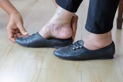 Elderly woman putting on shoes with care giver. royalty free stock photo