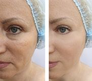 Elderly woman`s face wrinkles lifting dermatology regeneration treatment therapy before and after procedures. Elderly woman face wrinkles before and after royalty free stock photos