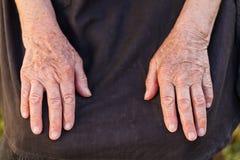 Elderly woman's hands Stock Photos