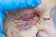 Elderly woman`s injured eye & nurse`s fingers Stock Photo