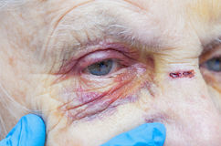 Elderly woman`s injured eye & nurse`s fingers Royalty Free Stock Photography