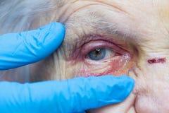 Elderly woman`s injured eye & nurse`s fingers. Close up picture of an elderly woman`s injured eye and nurse`s fingers stock photo