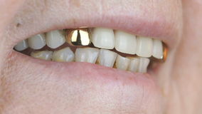 Elderly woman smiling with false teeth. Close up stock footage