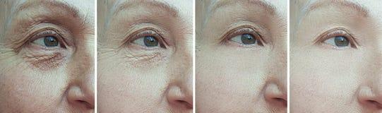 Free Elderly Woman Wrinkles Eyes Regeneration Blepharoplasty Before And After Treatment Stock Photos - 159599623