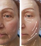 Elderly Woman wrinkles before after medicine contour tension hydrating the procedure effect regeneration royalty free stock photography