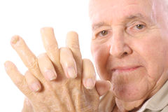 Eldery man with fingers cut off in accident. Shot of an eldery man with fingers cut off in accident Royalty Free Stock Photos