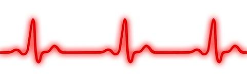 Elecktrocardiogram (ECG) graph. Elecktrocardiogram (ECG) pulse graph isolated on white Royalty Free Stock Photo