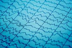 Electro metod de supervisión fisiológico de EEG Actividad eléctrica del cerebro foto de archivo libre de regalías