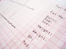Electrocardiografía de ECG Imagen de archivo