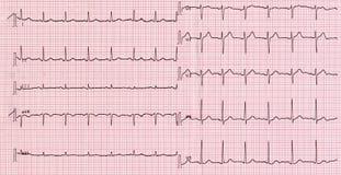 Electrocardiografia do batimento cardíaco Foto de Stock
